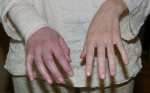 Comparison of swollen and healthy hand.